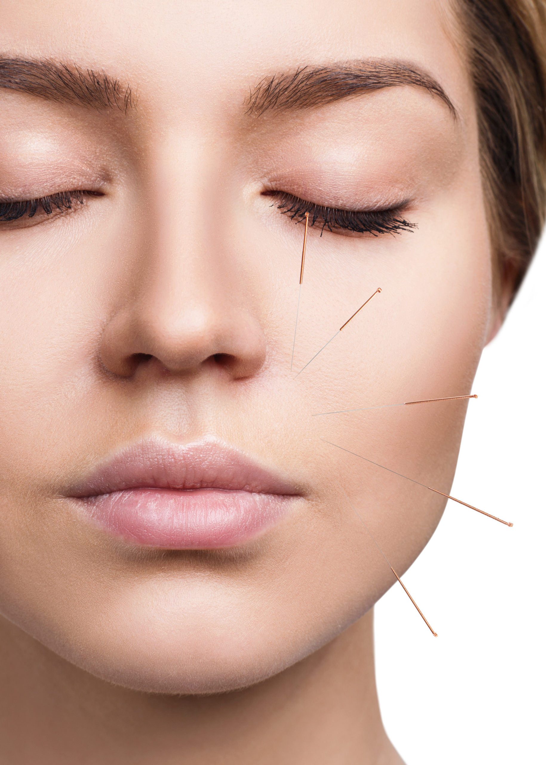 acupuncture lifting marseille
