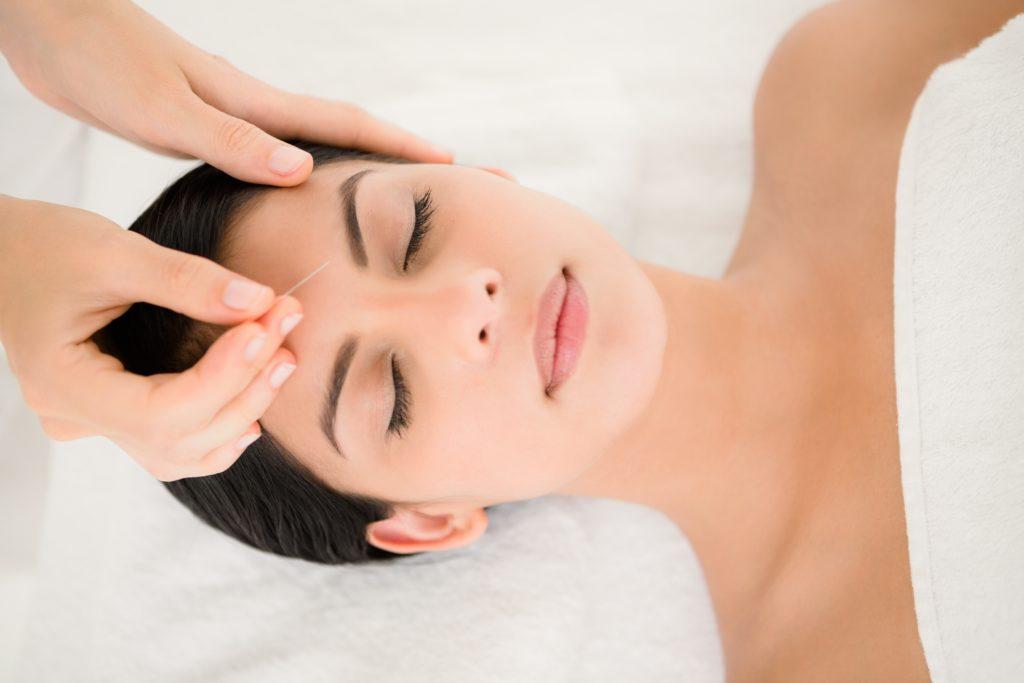 acupuncture visage aussi appelé lifting par acupuncture ou aculifting