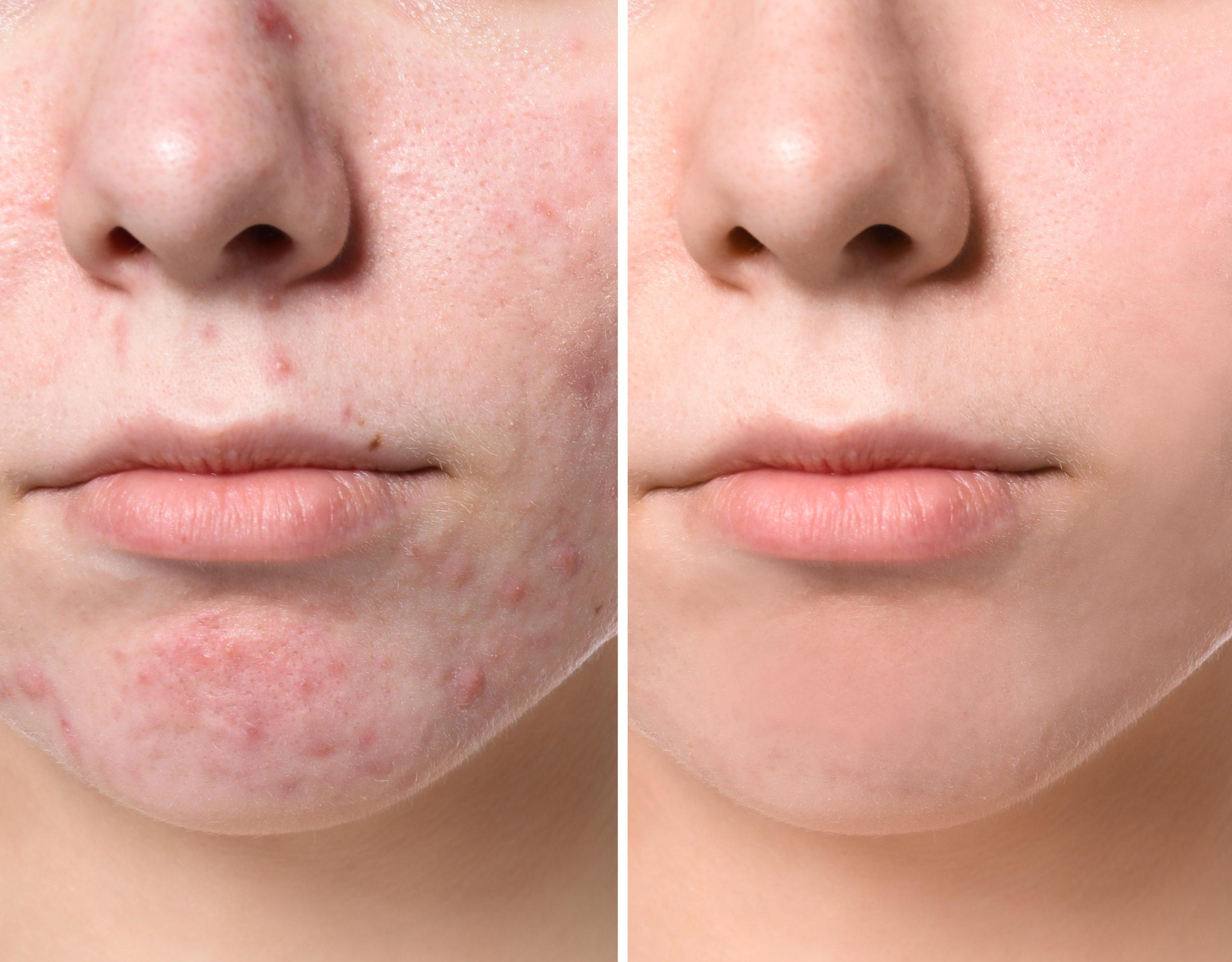 acné acne et acupuncture marseille